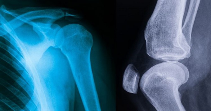 Joint Health – Maintaining Joints And Reducing Pain